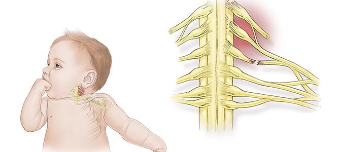 Brakial Pleksus Yaralanmaları