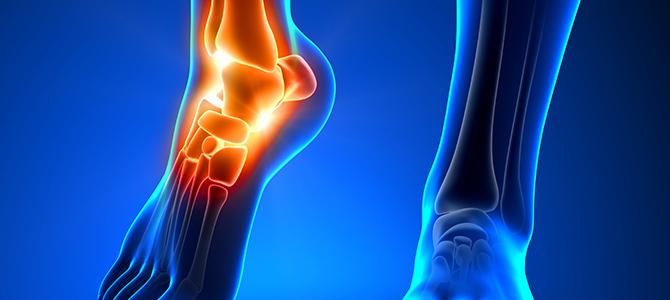 Fracture Rehabilitation