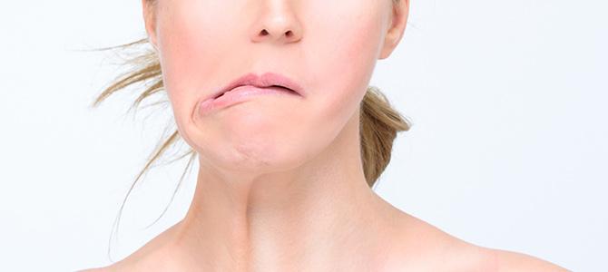 Facial Paralysis (Peripheral Facial Paralysis)