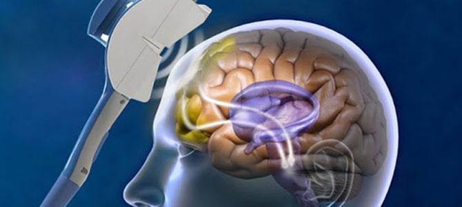 TMS (Transkraniyal Manyetik Stimulasyon)